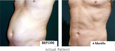lipo-before-and-afters2